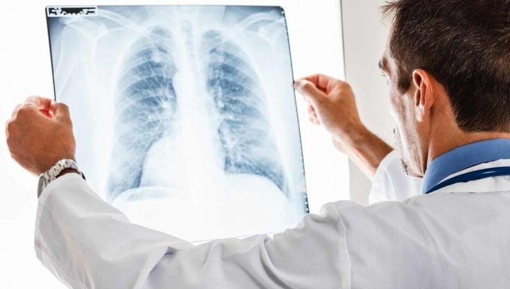 aosta,-muore-di-dissecazione-aortica-il-giorno-dopo-la-radiografia:-indagati-due-medici